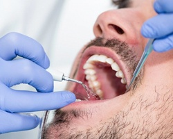 bearded man getting a dental cleaning