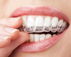 Closeup of patient placing clear aligner