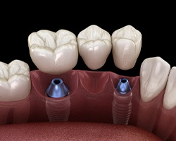 Dental bridge on implants