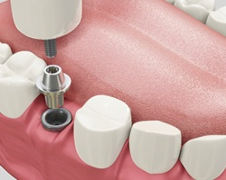 Dental Implant Parts