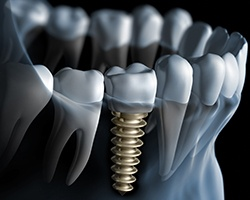 Animation of implant retained dental crown