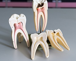 Models of the insides of healthy and unhealthy teeth